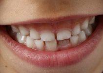O que significa sonhar com dente nascendo?